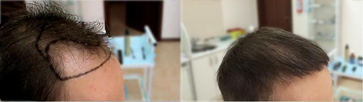 Пересадка волос петрозаводск