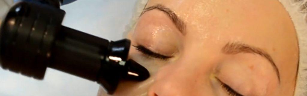 RF лифтинг вокруг глаз