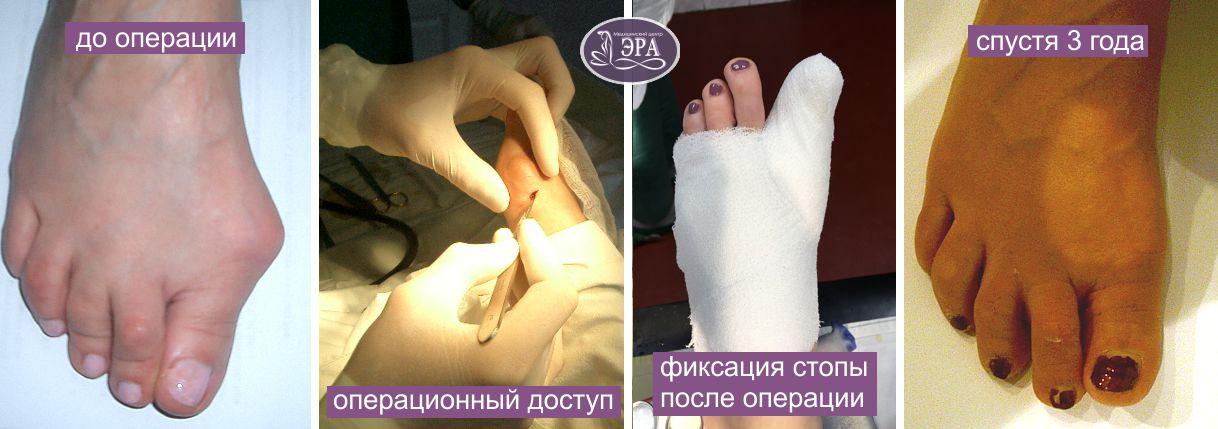 Лечение косточки большого пальца ноги